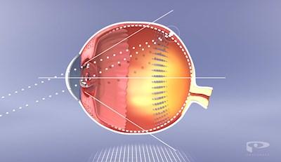 Myopiemanagement - Kurzsichtigkeit entgegenwirken